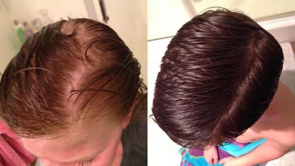 Лечение волос24.09